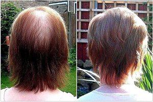 Hiusten kasvatus biotiinilla – Lue ennen kokeilua!